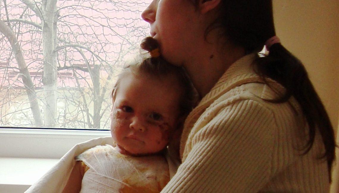 Child recovering from burn. By Tatiana Isacova